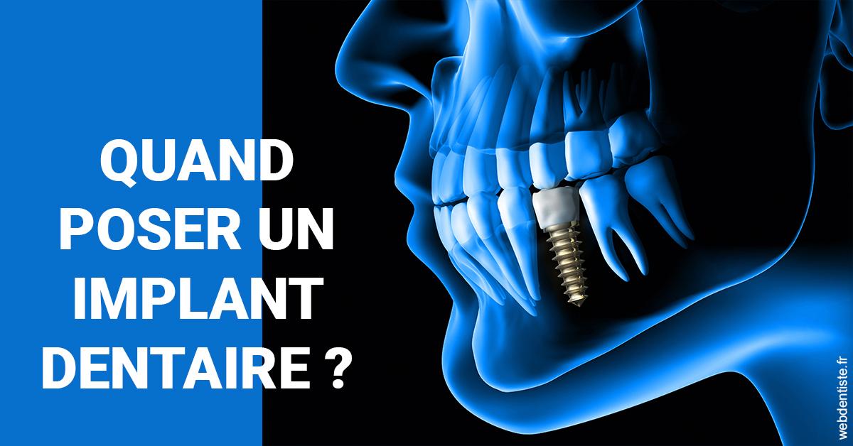 https://dr-hulot-jean.chirurgiens-dentistes.fr/Les implants 1